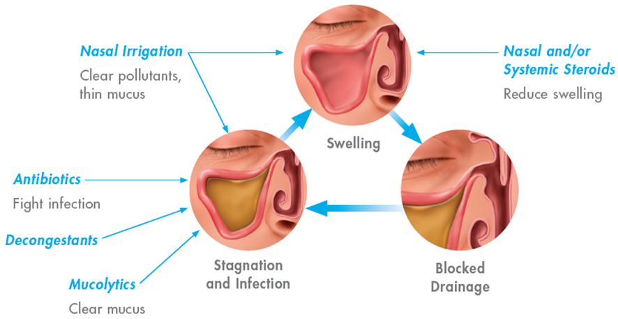 Medical therapy can be an effective way to treat sinus problems in Allen Park & Southfield.
